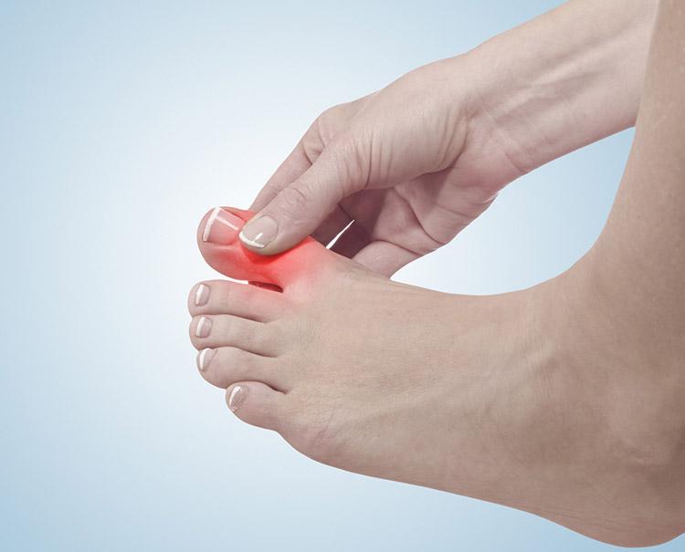 Gicht Ursachen: Harnsäurekristalle in den Gelenken