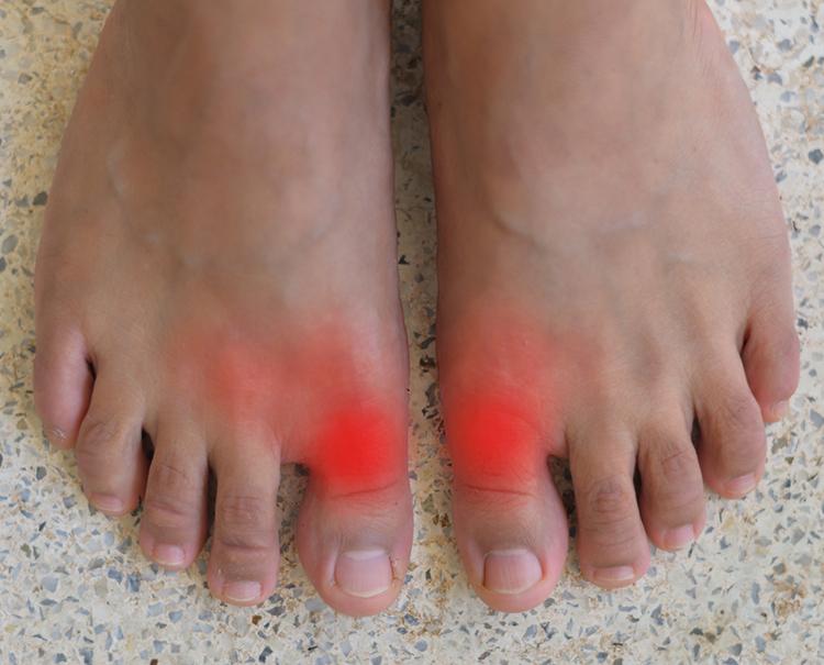 Gicht Fuß: Wenn die große Zehe Alarm schlägt