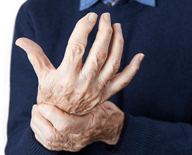 Rheumatische Arthritis: Symptome früh erkennen